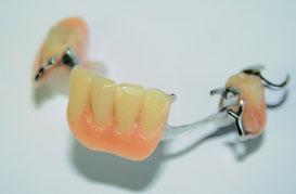 Prothèse dentaire partielle amovible | Hogan et Messier denturologistes